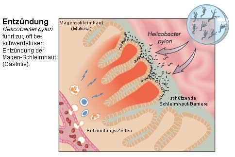 Nobelpreis 2005 - Magenkeim Helicobacter pylori: Durch Widerspruch ...